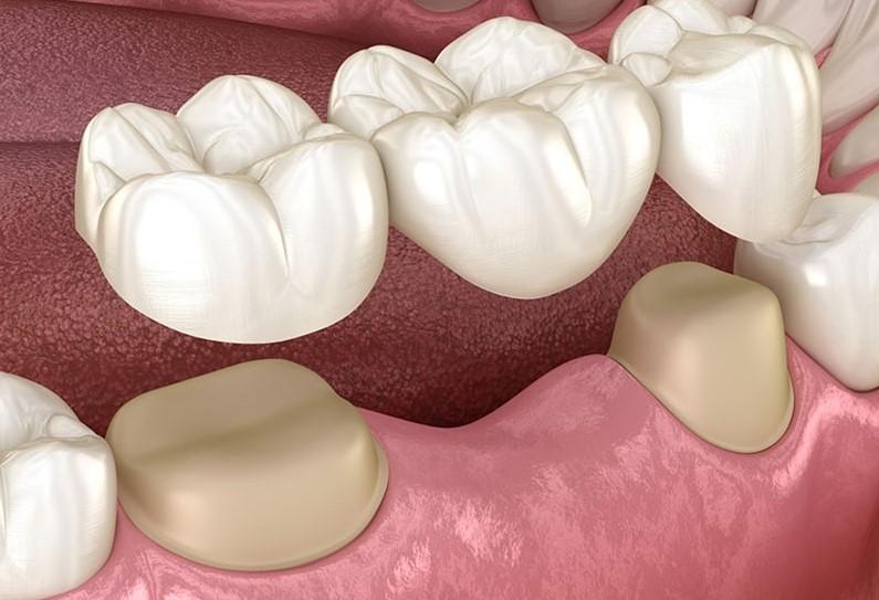 dental bridges in nw calgary