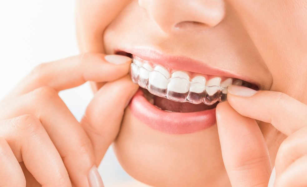 everything you should know about eating and drinking with invisalign