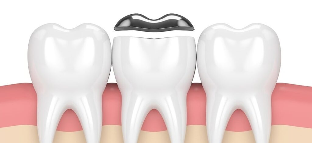 dental inlays and onlays in nw calgary