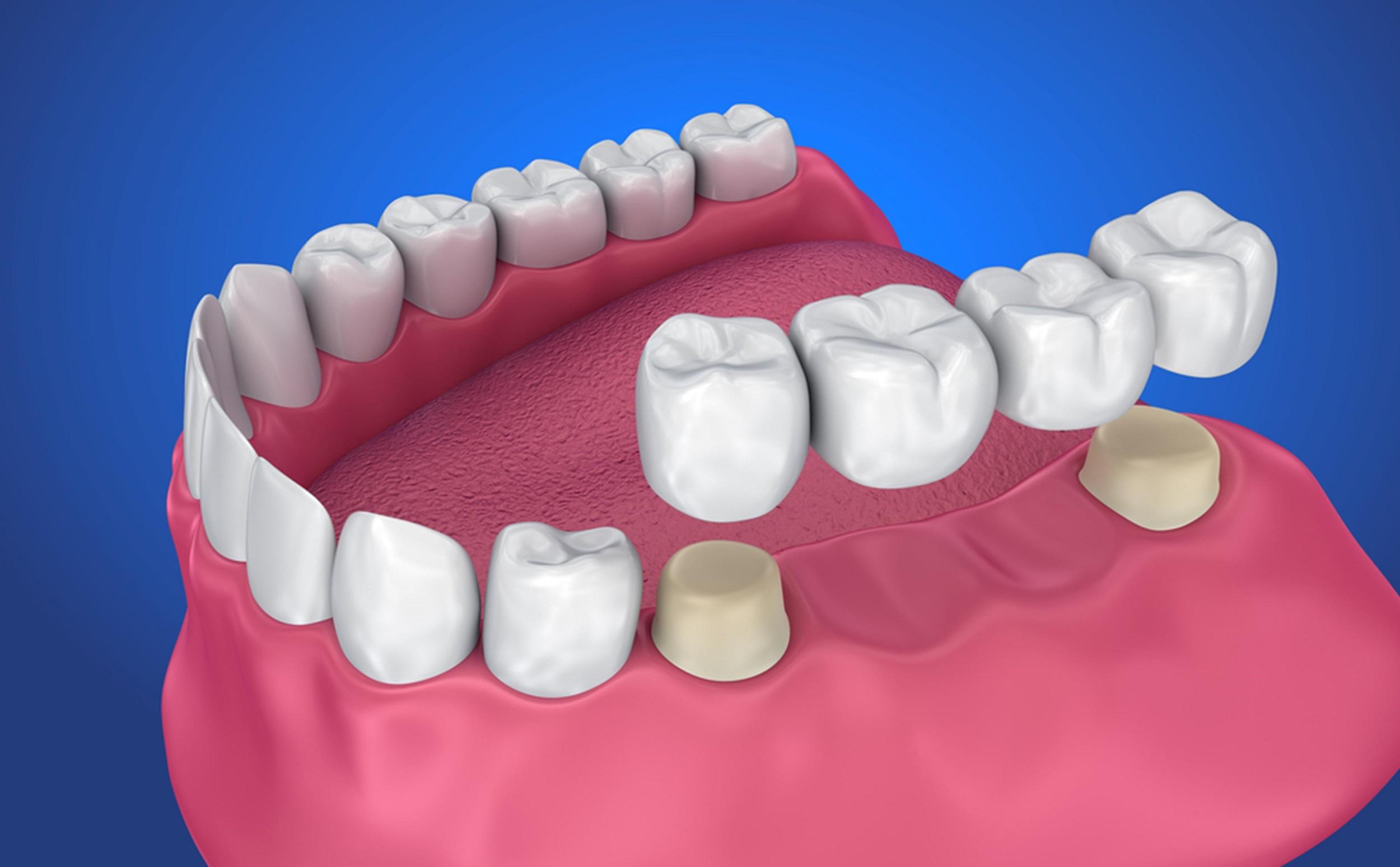 finding the right dentist for dental bridges